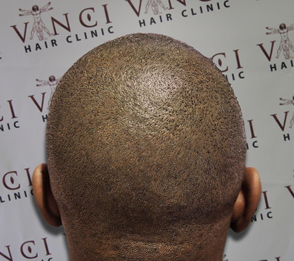 Tattoo-Funniest Solutions For Baldness
