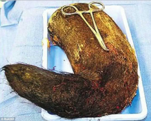 A Massive Hairball-Most Shocking Things Found In Peoples Stomachs