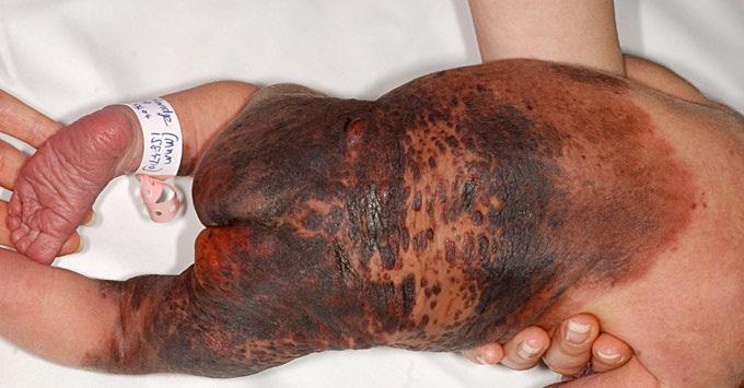 An uncomfortable birthmark-Bizarre Birthmarks Ever