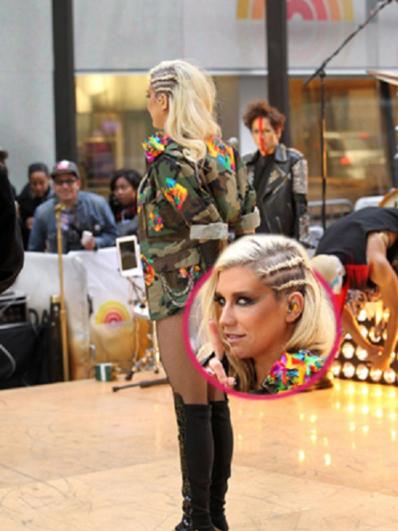 Kesha's vestigial tail-15 Celebrities With Strange Physical Flaws You Probably Don't Know About