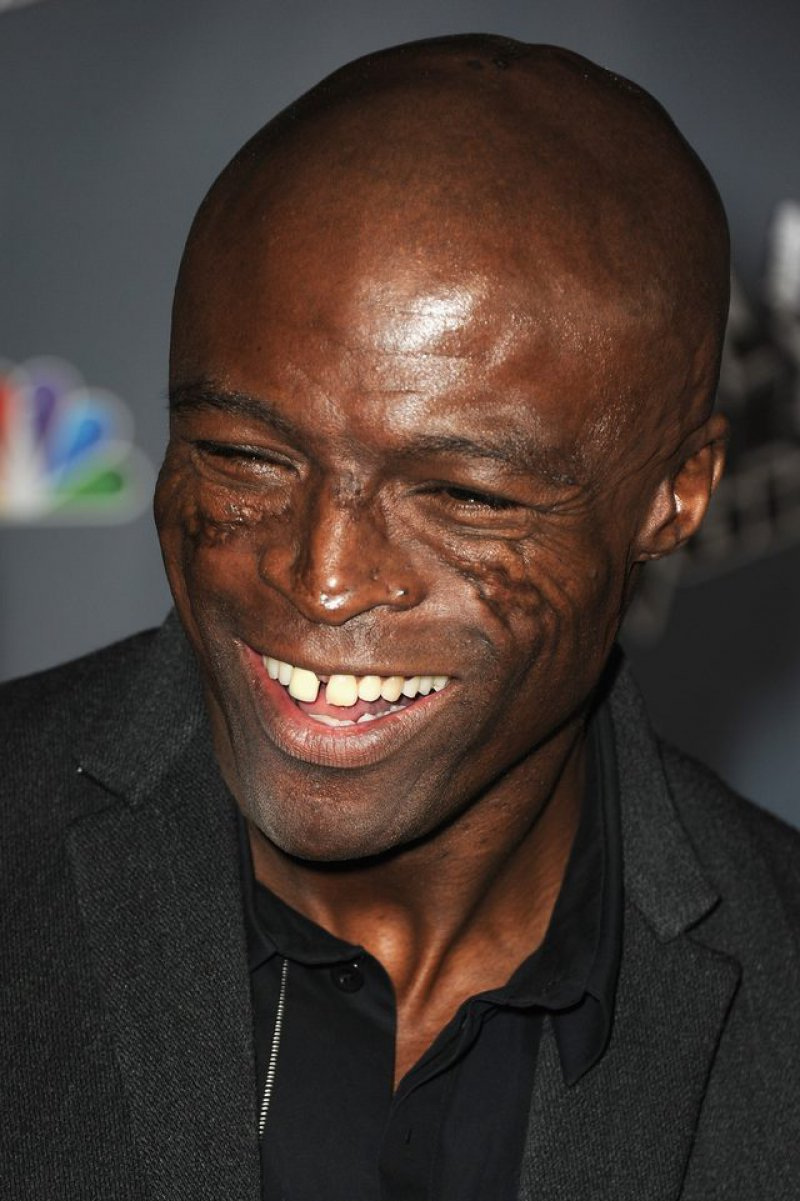 Seal Face Scars-15 Celebrities With Strange Physical Flaws You Probably Don't Know About