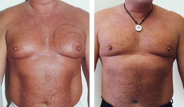 Male breast reduction-Most Expensive Plastic Surgeries In The World