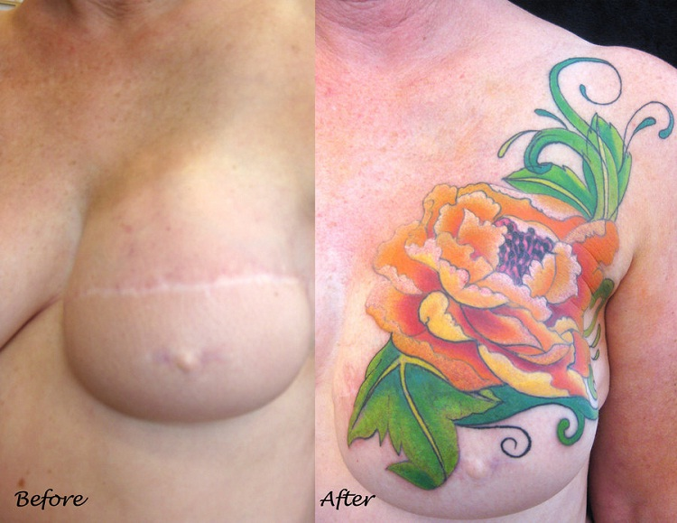 Colorful Flowers-Best Tattoos To Cover A Scar