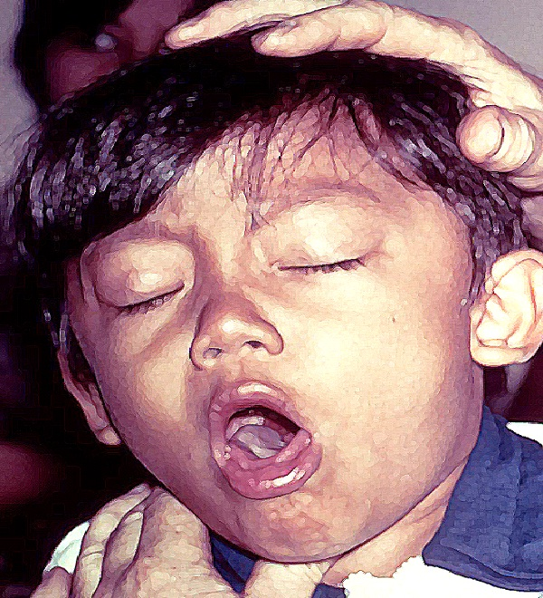 Whooping Cough-Worst Diseases