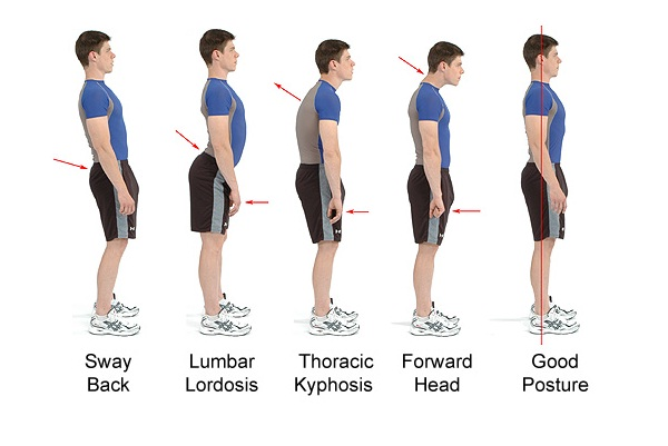 Posture-Top Tips To Take Care Of Your Back
