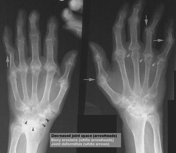 Arthritis-Incurable Diseases