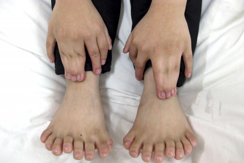 Toes Galore-People Who Were Born With Extra Body Parts