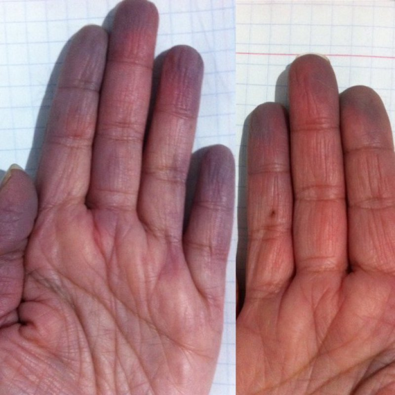 When Your Blood Rushes Back in...-15 Things Only People With Raynaud's Will Understand
