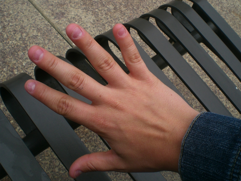 People Find Nail-biting Gross-Here's What Nail Biting Can Do To You