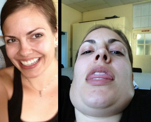 What about the chin?-12 Photos That Show Pretty Girls Making Ugly Faces