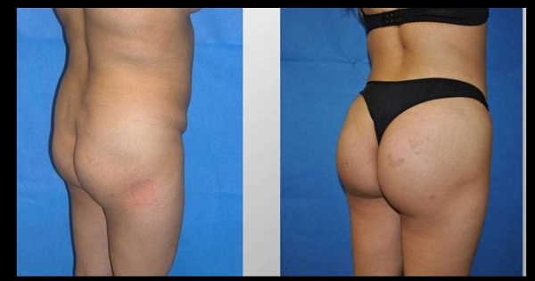 Butt lift-Most Expensive Plastic Surgeries In The World
