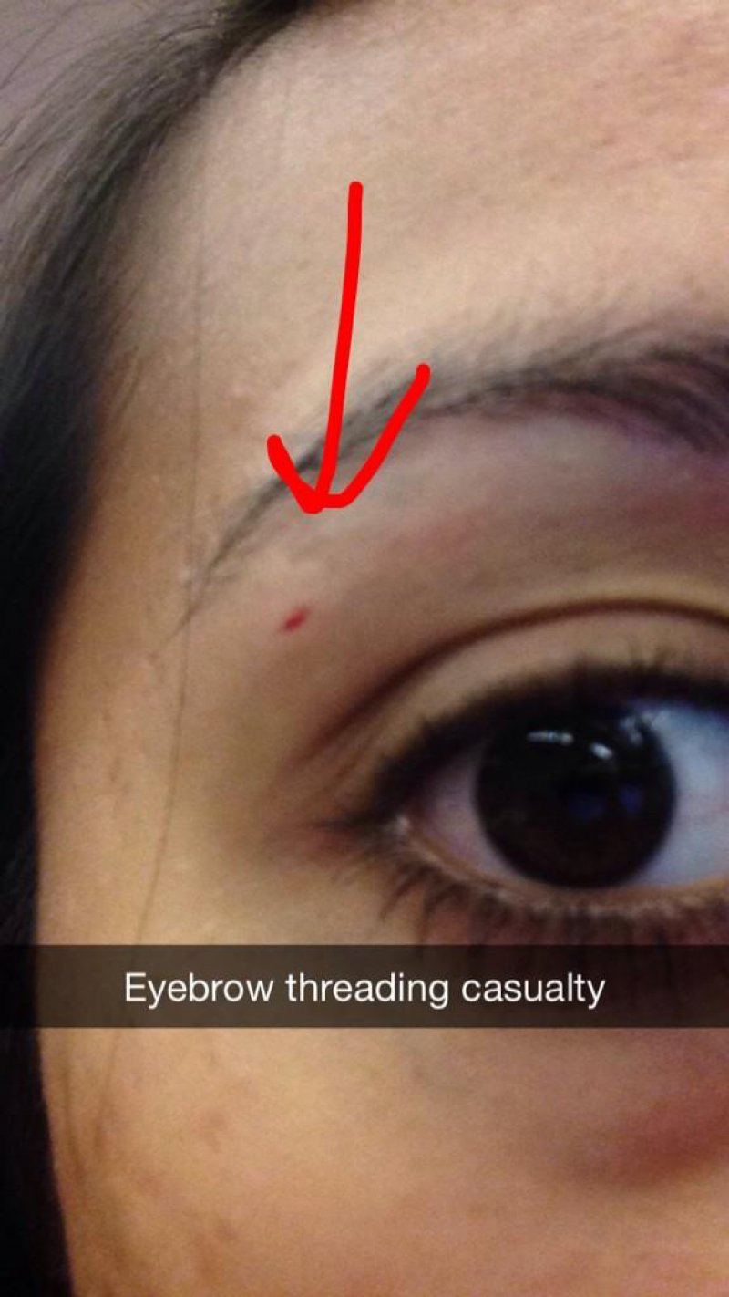 Eyebrow Threading Accident-15 Things That Will Make You Cringe If You're A Girl