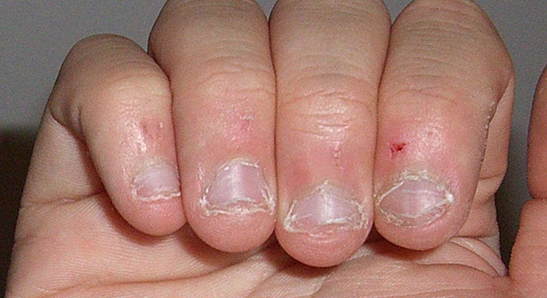 Here's What Nail Biting Can Do To You