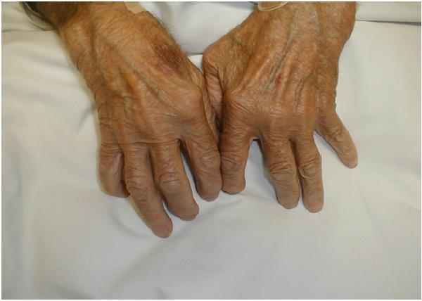Relieving Arthritis Symptoms-Benefits Of Being Vegan