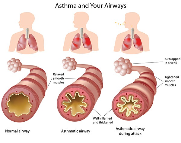 Asthma-Health Benefits Of Yoga
