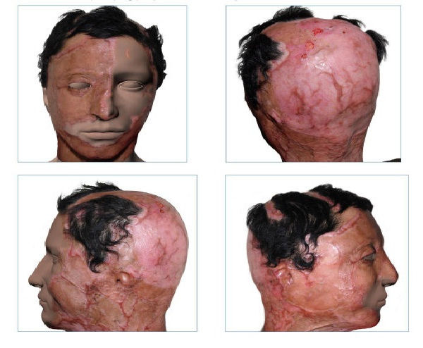 Acid attack-Relationships Destroyed By The Internet