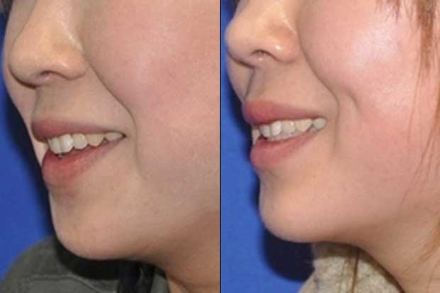 Fake dimple-Bizarre New Types Of Cosmetic Surgery
