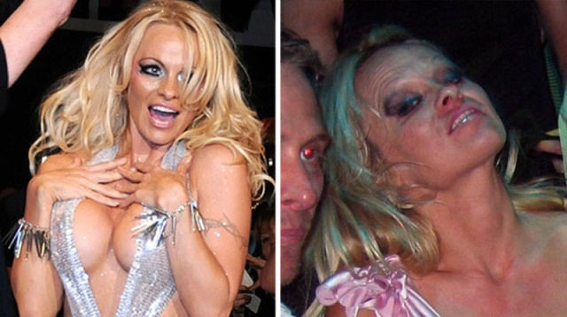 Pammy Becomes Zombie Drunk-15 Celebrities Who Were Caught Drunk