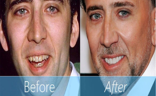 Nick is Caged-Celebrities Who Have Fixed Their Teeth