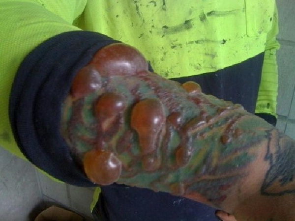 Blood blisters-Tattoo Removal Disasters