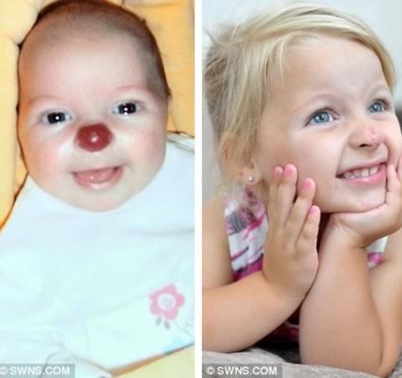 Right on the nose-Bizarre Birthmarks Ever