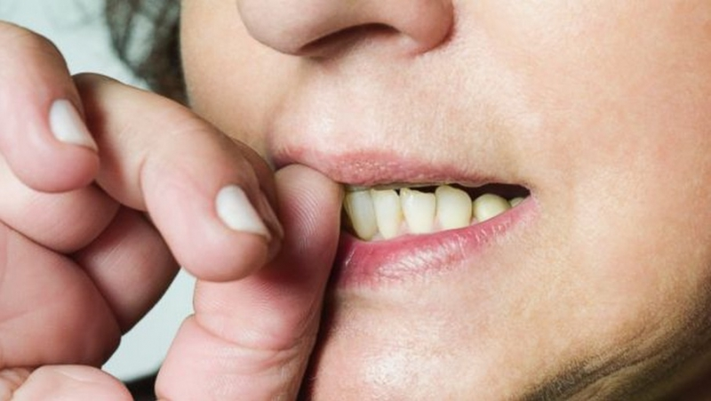 Nail-biting Transfers Germs Into Your Mouth-Here's What Nail Biting Can Do To You