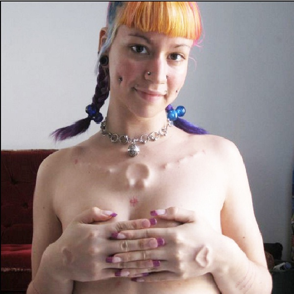 Implanted but innocent-Bizarre Body Modification Implants