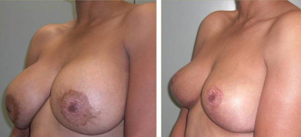Breast implant removal-Most Expensive Plastic Surgeries In The World