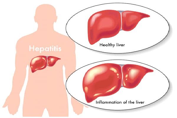 Hepatitus-Worst Diseases