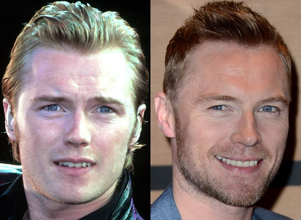 Ronan The Regular Guy-Celebrities Who Have Fixed Their Teeth