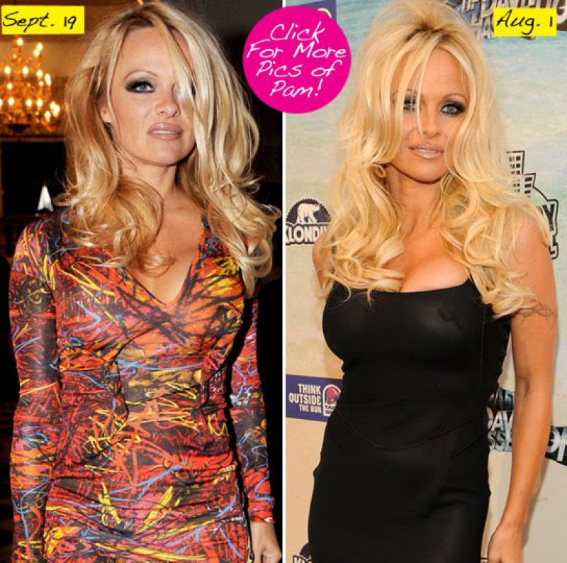 Pamela Anderson Before And After Breast Reduction Surgery-15 Celebrities Who Had Breast Reduction Surgeries