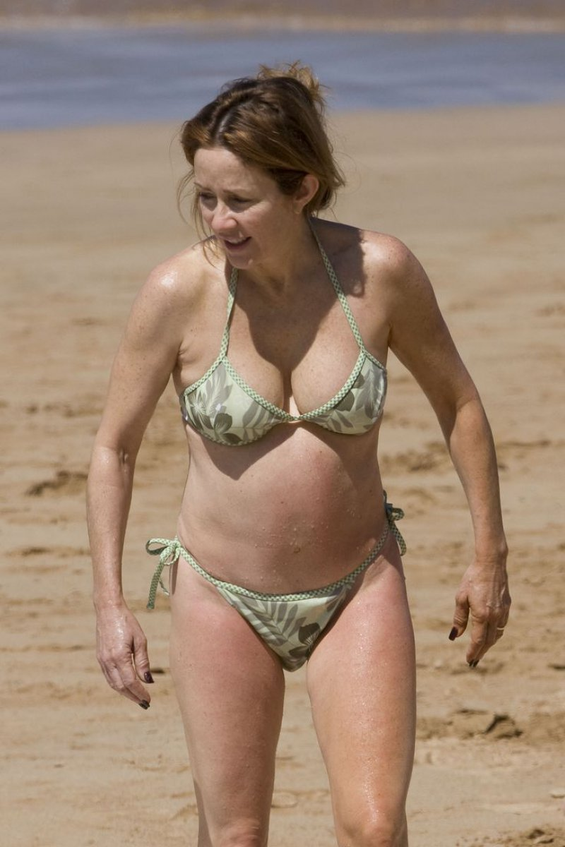 Patricia Heaton-15 Celebrities With Strange Physical Flaws You Probably Don't Know About