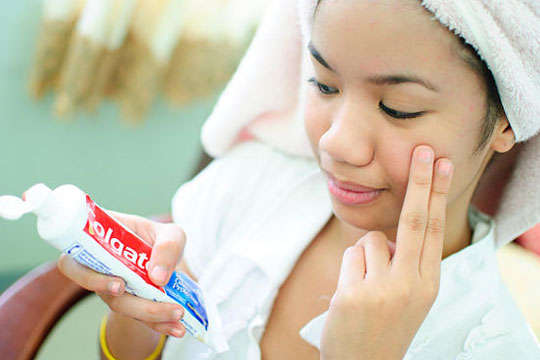 A Surprise Acne Remedy-15 Unusual Uses For Toothpaste