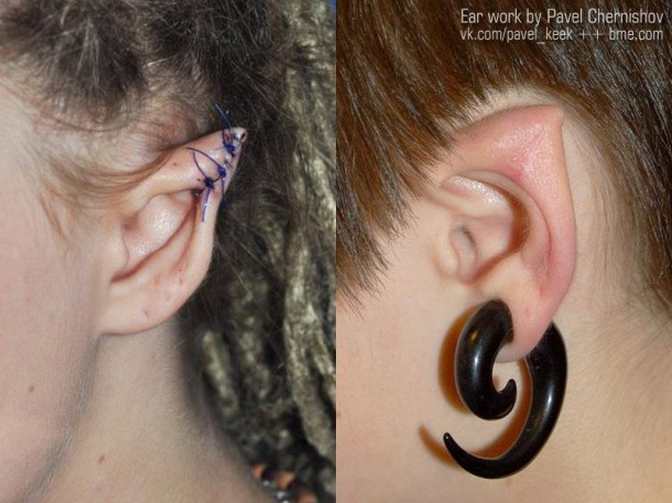 Elf Ears-Bizarre Body Modification Implants