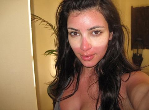 Kim Kardashian-Celebs Who Are Living With A Disease