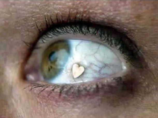 Extraocular Implant-Bizarre Body Modification Implants