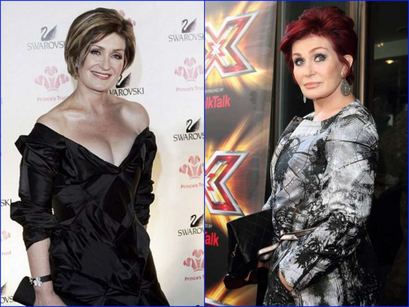 Sharon Osbourne Before and after Breast Reduction Surgery-15 Celebrities Who Had Breast Reduction Surgeries