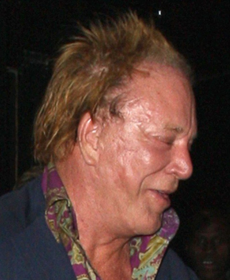 Mickey Rourke-12 Celebrities With Scars And Deformities