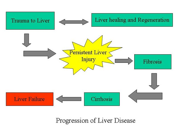 Liver disease-Benefits Of Drinking Green Tea
