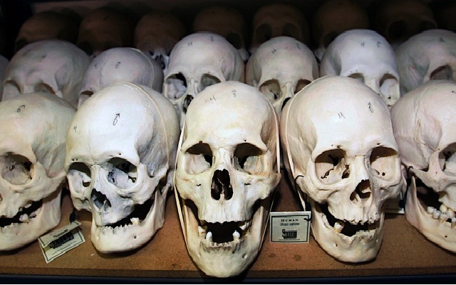 Human Remains?-Most Disgusting Things Sold On Etsy