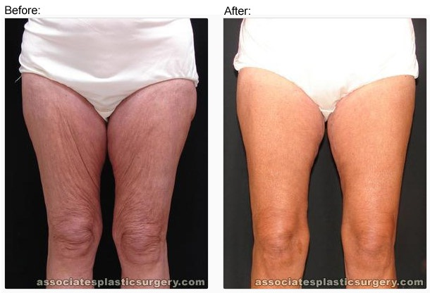 Thigh lift-Most Expensive Plastic Surgeries In The World
