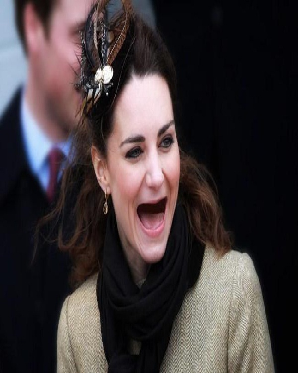Kate Middleton-Celebs Without Teeth
