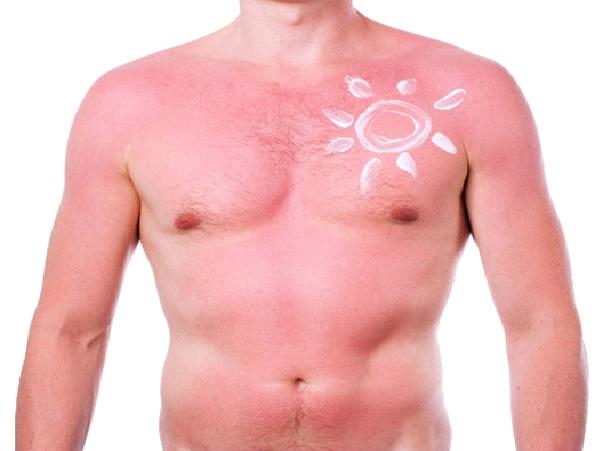 Sunny Days-Amazing Sunburn Art