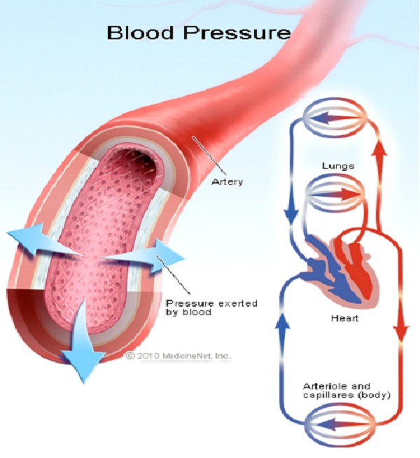 High Blood Pressure-Bad Things Which Are Genetic