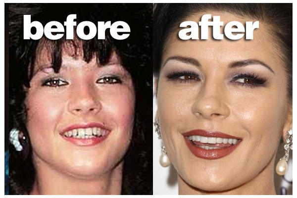 The English Rose-Celebrities Who Have Fixed Their Teeth