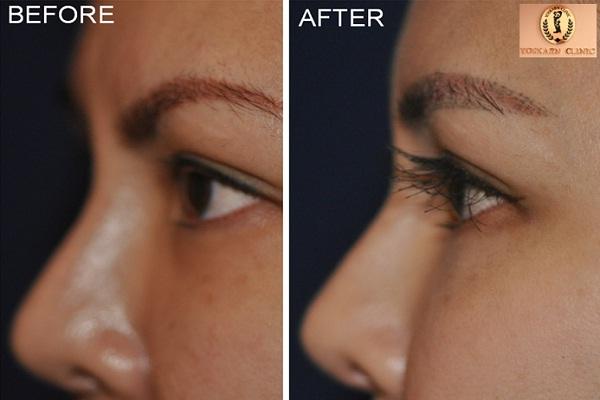 Eyelash transplants-Bizarre New Types Of Cosmetic Surgery