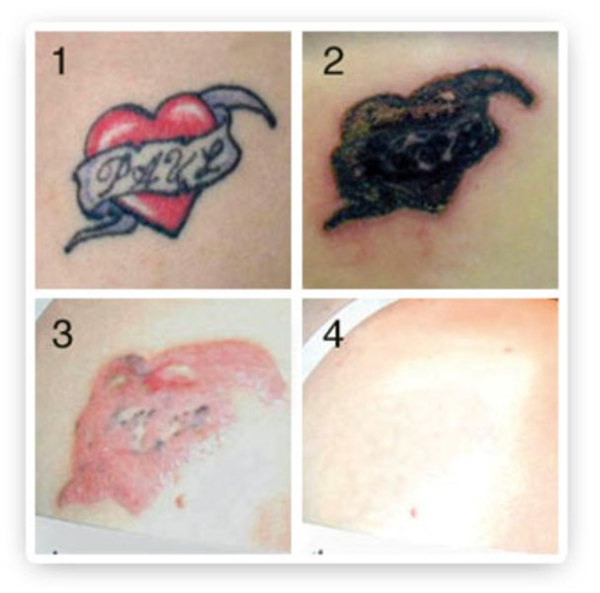 Different skin-Tattoo Removal Disasters