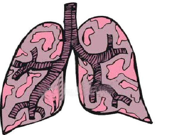 Tuberculosis-Worst Diseases