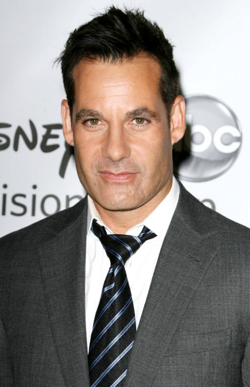 Adrian Pasdar-12 Celebrities With Scars And Deformities