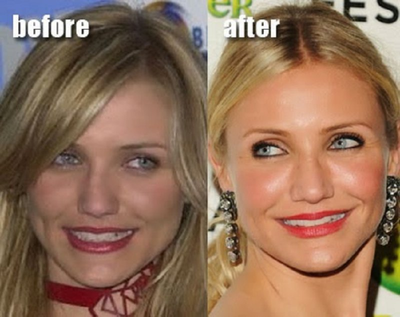 12 Celebrity Nose Jobs You Didn't Know About